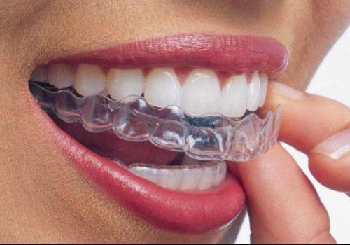 dental-in
